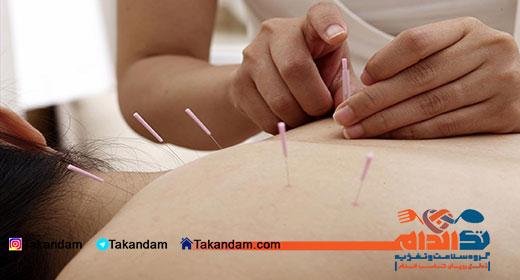 acupuncture-benefits-2