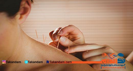acupuncture-benefits-4