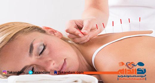 acupuncture-benefits-6