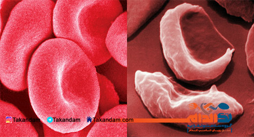 anemia-symptoms-blood