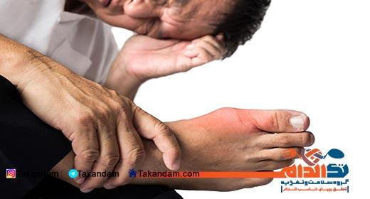 arthritis-foot