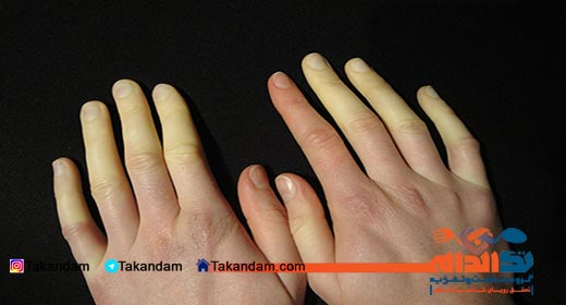 cold-hands-problem-raynaud