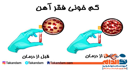 iron-deficiency-treatment